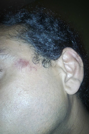 Marks also posted this photo showing a scratch on the side of his face.
