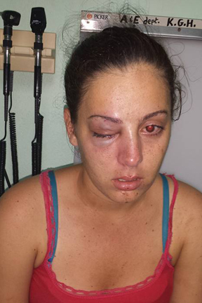 Sheriss Veira was punched in the face repeatedly during an attack Monday night.