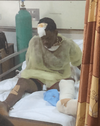 The suspect, Jorani Robert, was injured, reportedly when beaten by civilians who apprehended him.