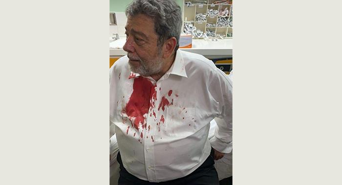 Bloodied Ralph Golsalves